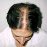 Male Baldness Patient