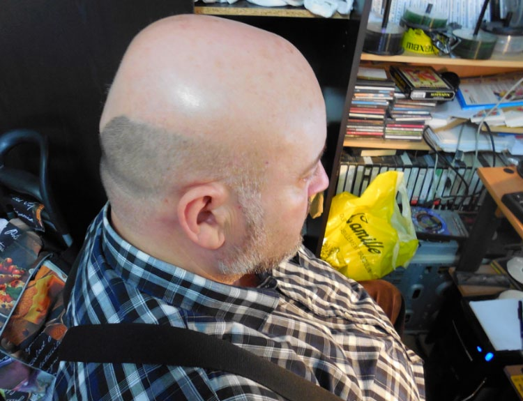 Baldness is reversible: Hair Again - Hair Always